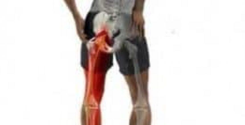 Sciatica Total Balance Chiropractic Newcastle and Hunter Region