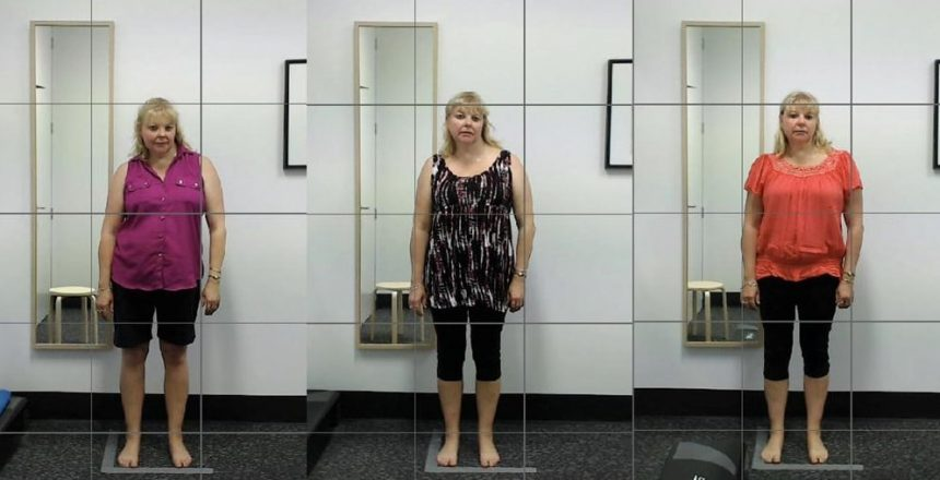 Scoliosis Total Balance Chiropractic Newcastle and Hunter Region